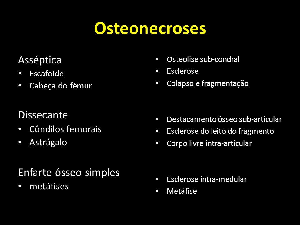 Osteonecroses Asséptica Dissecante Enfarte ósseo simples