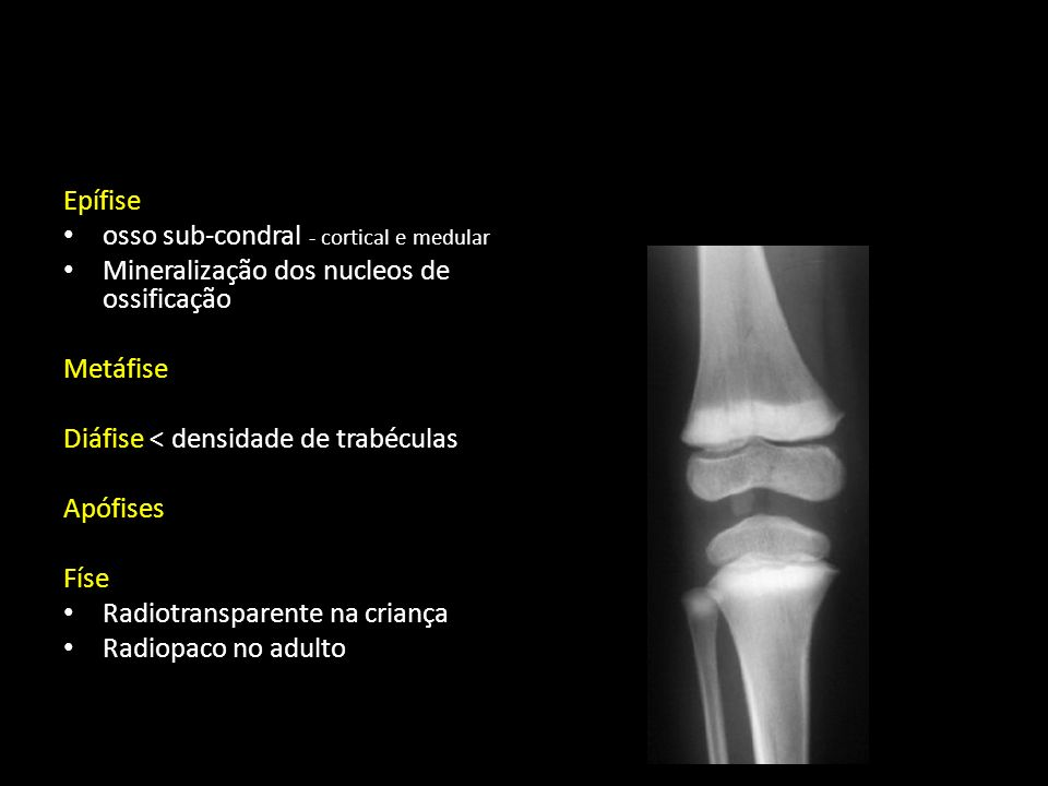 Epífise osso sub-condral - cortical e medular. Mineralização dos nucleos de ossificação. Metáfise.