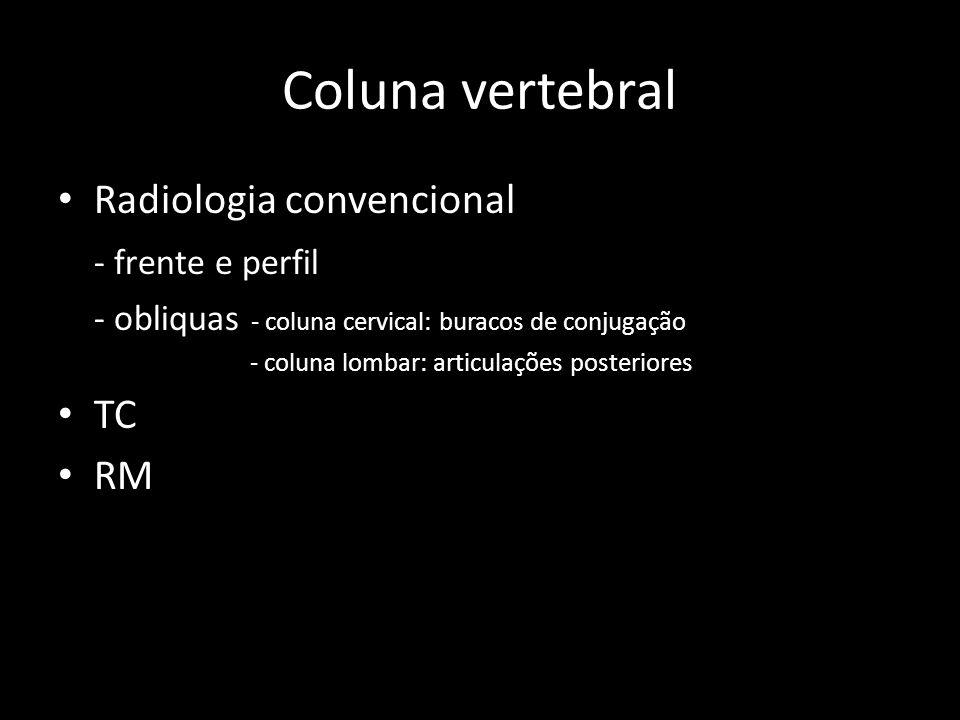 Coluna vertebral Radiologia convencional - frente e perfil TC RM