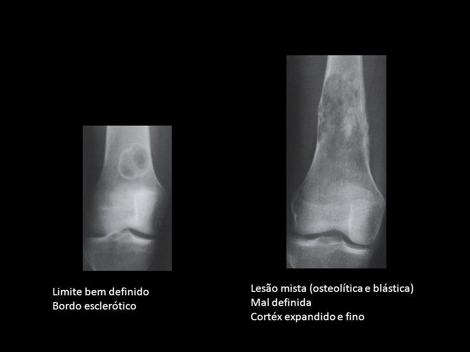 Lesão mista (osteolítica e blástica)