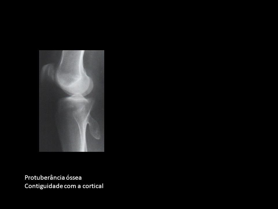 Protuberância óssea Contiguidade com a cortical