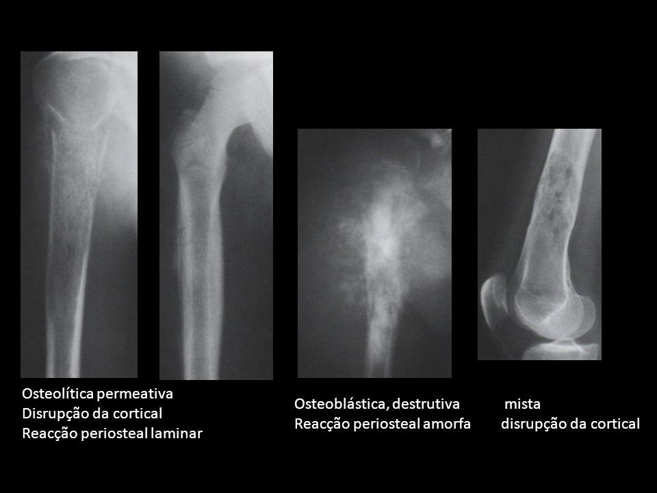 Osteolítica permeativa Disrupção da cortical