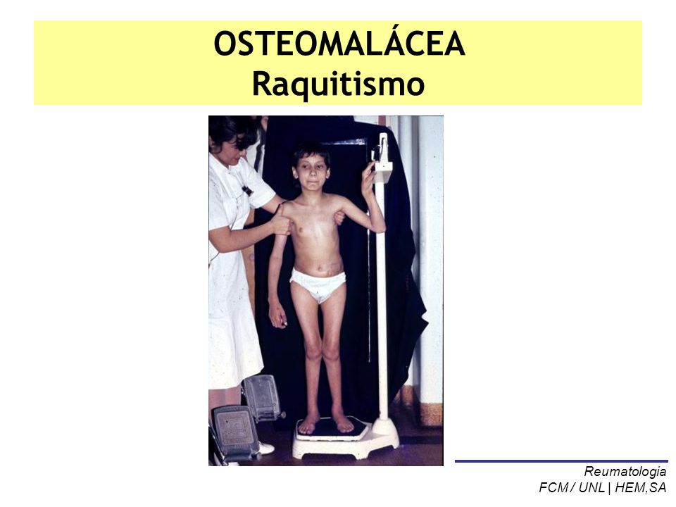 OSTEOMALÁCEA Raquitismo