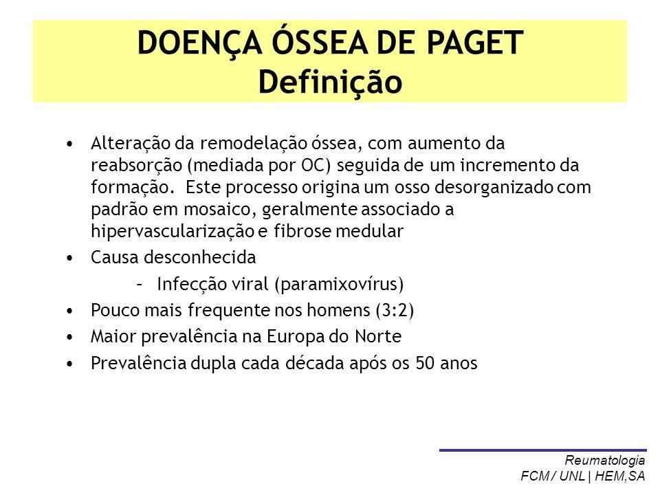 DOENÇA ÓSSEA DE PAGET Definição