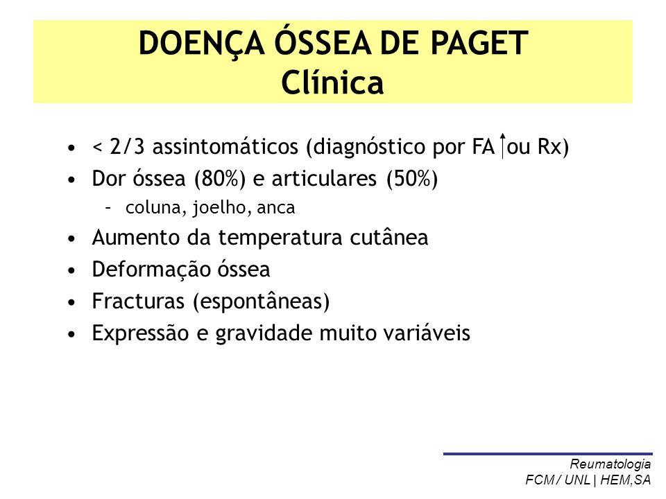 DOENÇA ÓSSEA DE PAGET Clínica