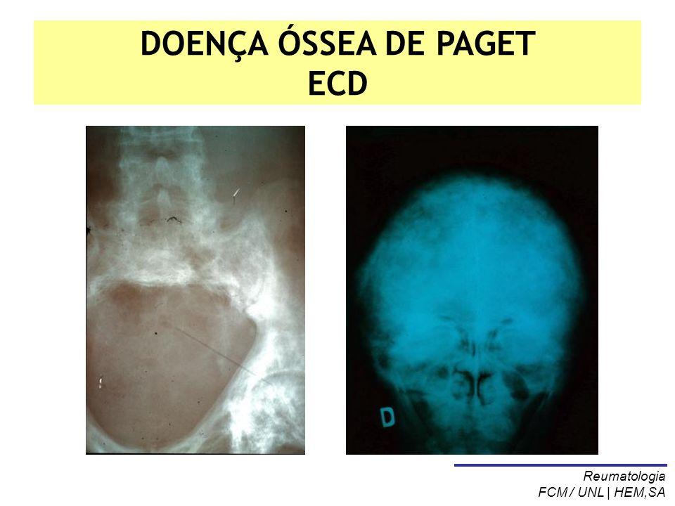 DOENÇA ÓSSEA DE PAGET ECD
