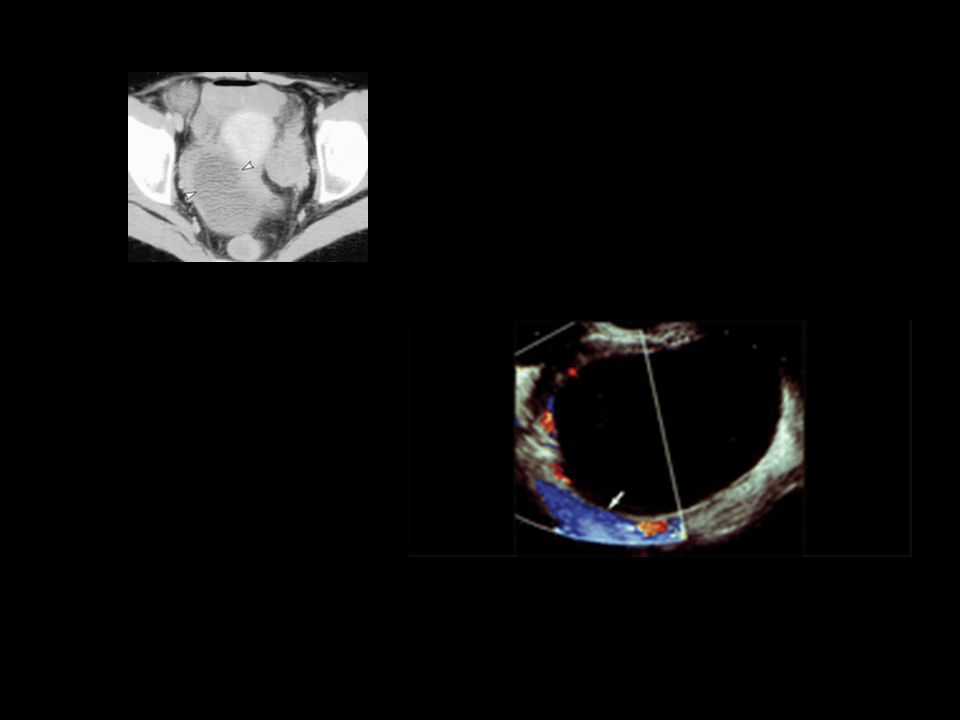 varian cyst aspiration in a 30-year-old woman with acute lower abdominal pain.