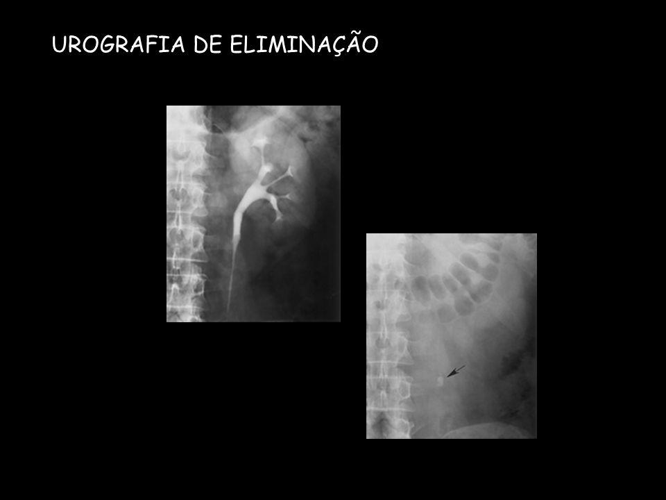 UROGRAFIA DE ELIMINAÇÃO