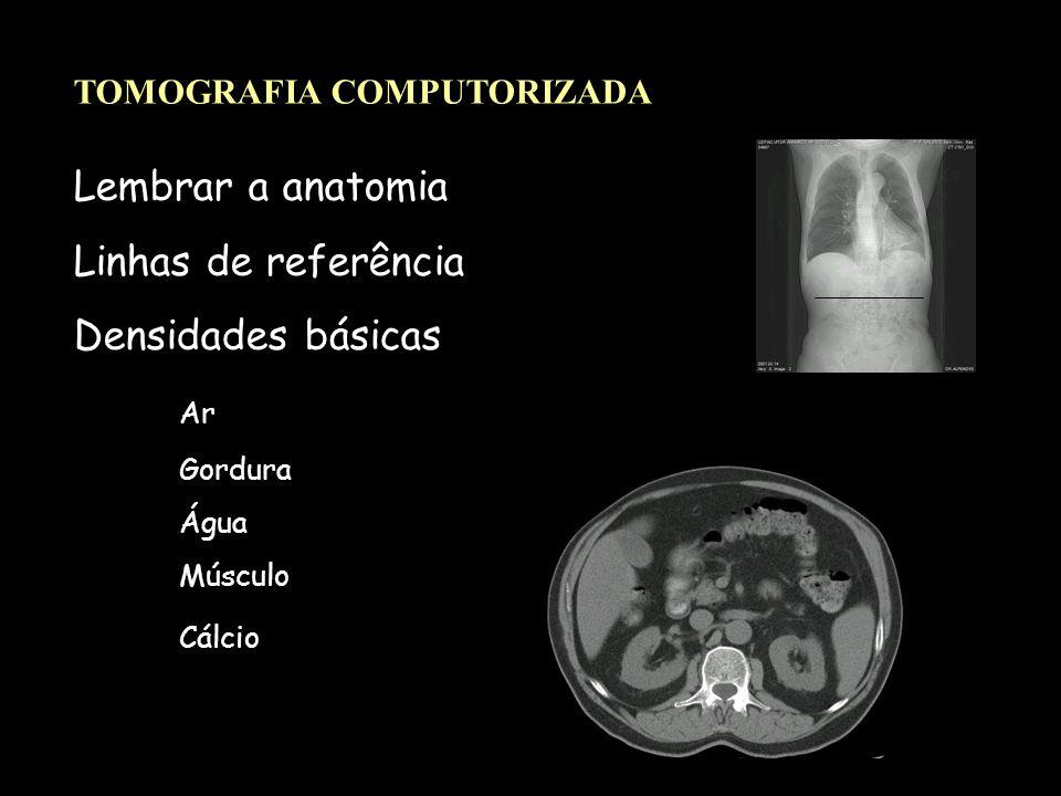 Lembrar a anatomia Linhas de referência Densidades básicas Ar