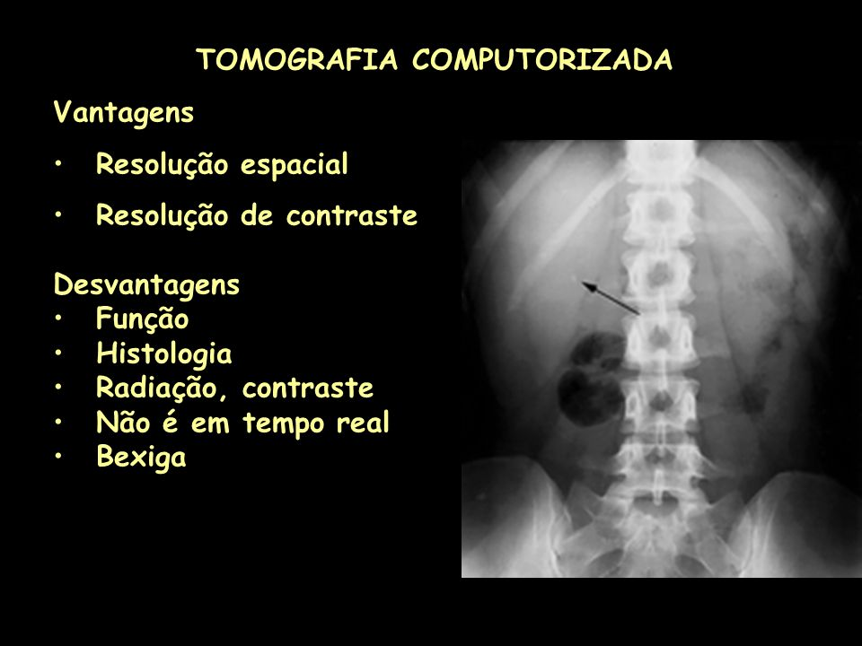 TOMOGRAFIA COMPUTORIZADA