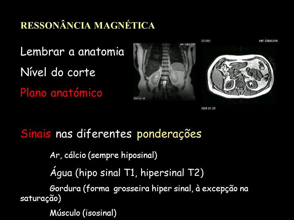 Sinais nas diferentes ponderações Ar, cálcio (sempre hiposinal)