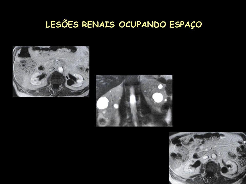 LESÕES RENAIS OCUPANDO ESPAÇO