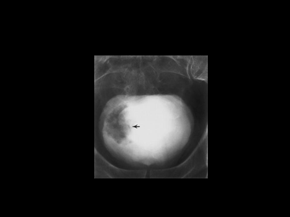 Carcinoma de cels transicao bexiga