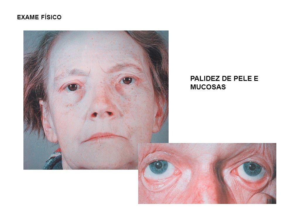 PALIDEZ DE PELE E MUCOSAS