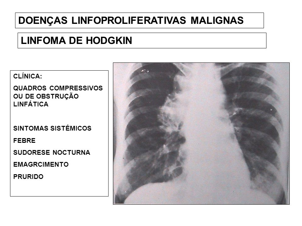 DOENÇAS LINFOPROLIFERATIVAS MALIGNAS