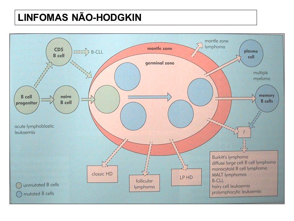 LINFOMAS NÃO-HODGKIN