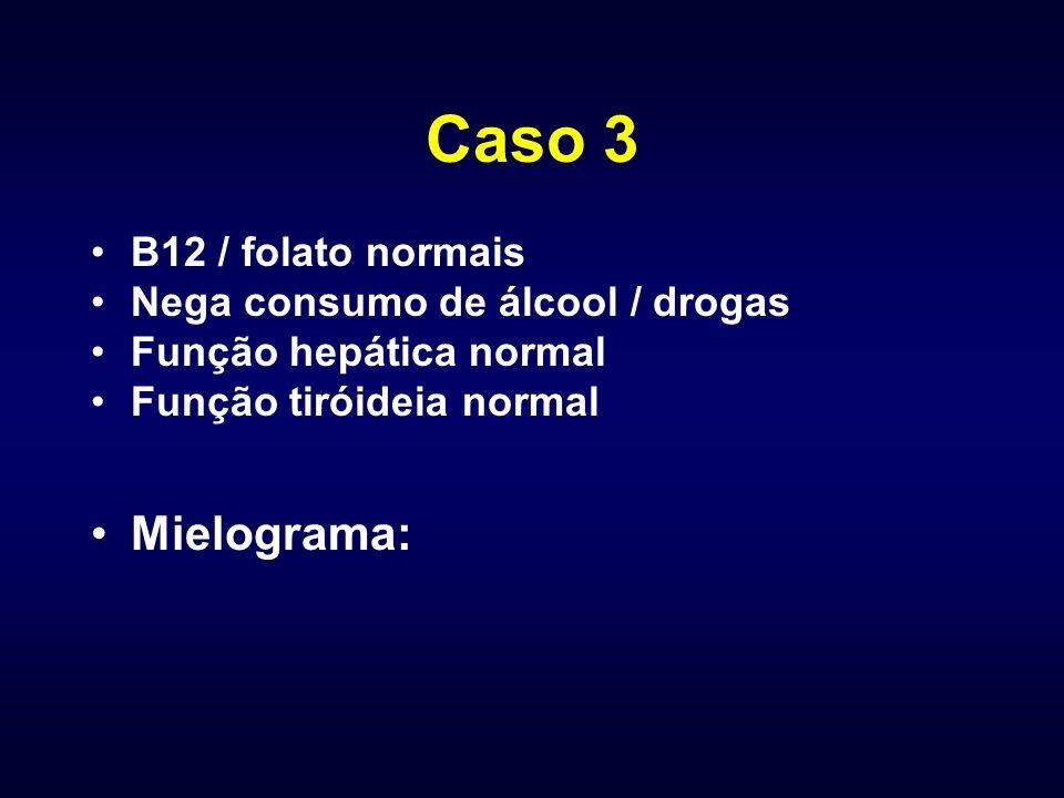 Caso 3 Mielograma: B12 / folato normais