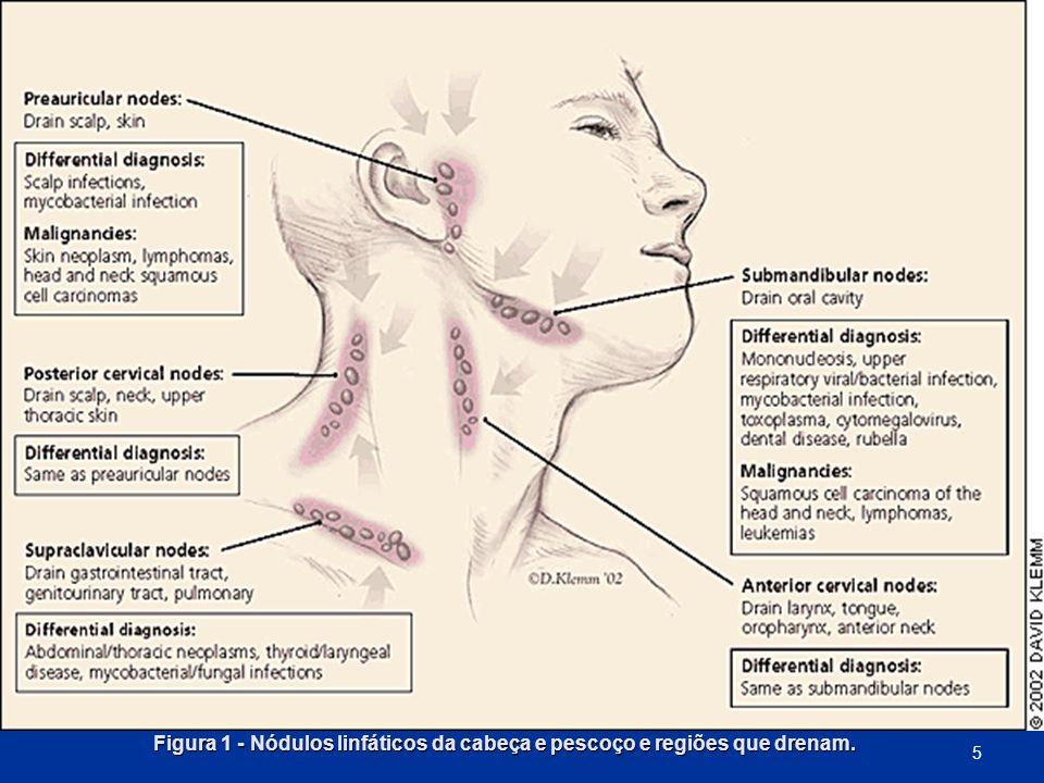 Figura 1 - Nódulos linfáticos da cabeça e pescoço e regiões que drenam.