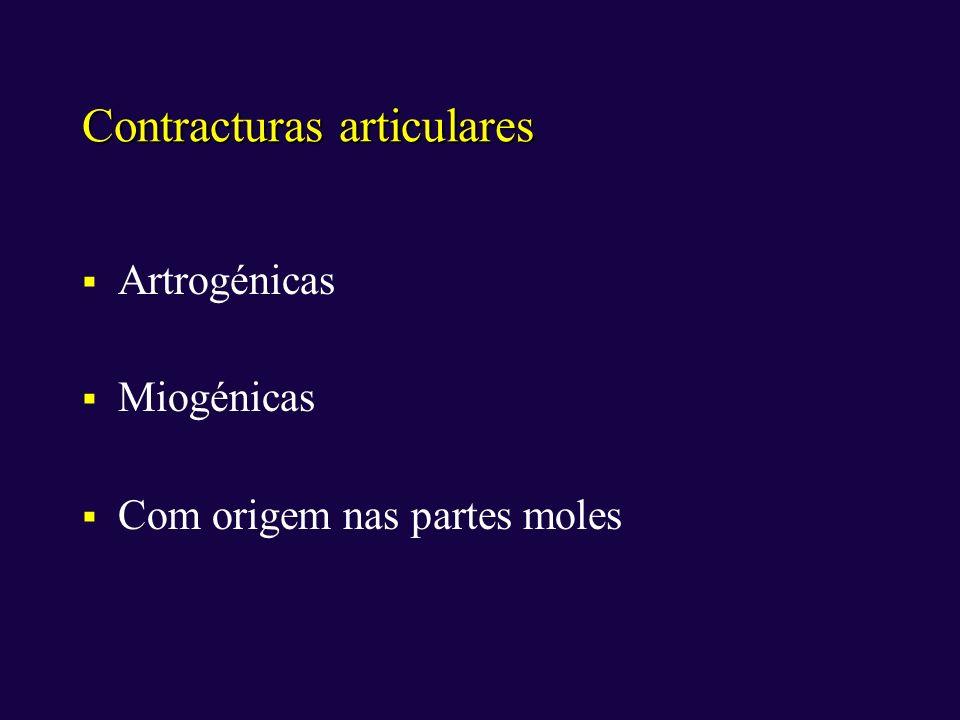 Contracturas articulares