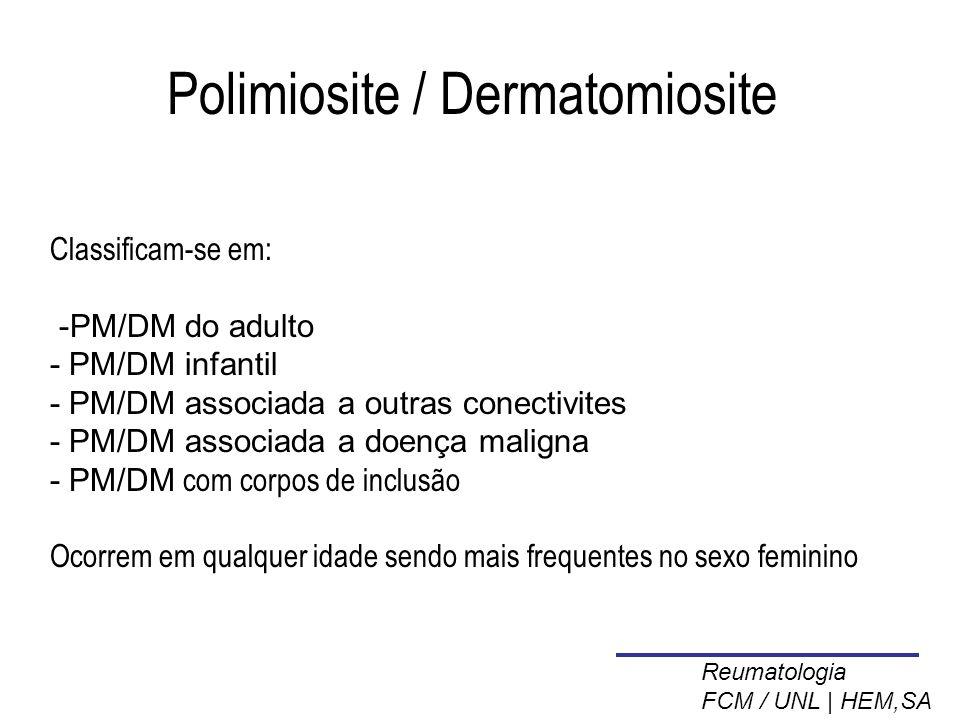 Polimiosite / Dermatomiosite