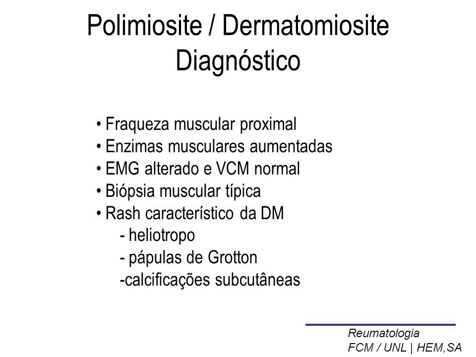 Polimiosite / Dermatomiosite Diagnóstico
