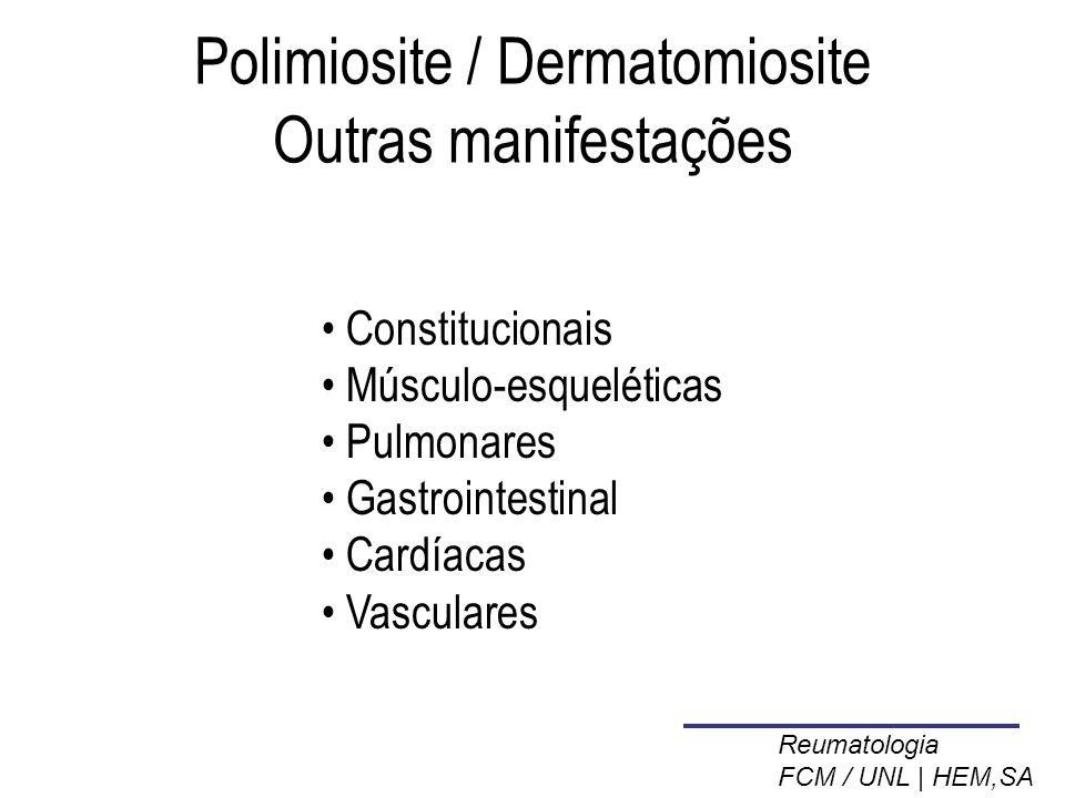 Polimiosite / Dermatomiosite Outras manifestações