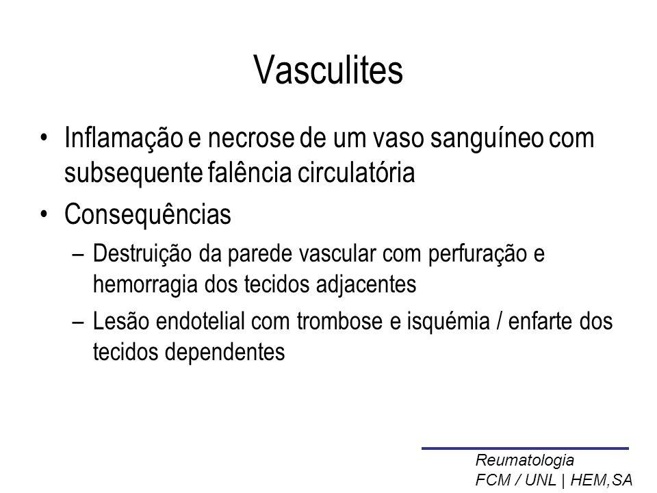 Vasculites Inflamação e necrose de um vaso sanguíneo com subsequente falência circulatória. Consequências.