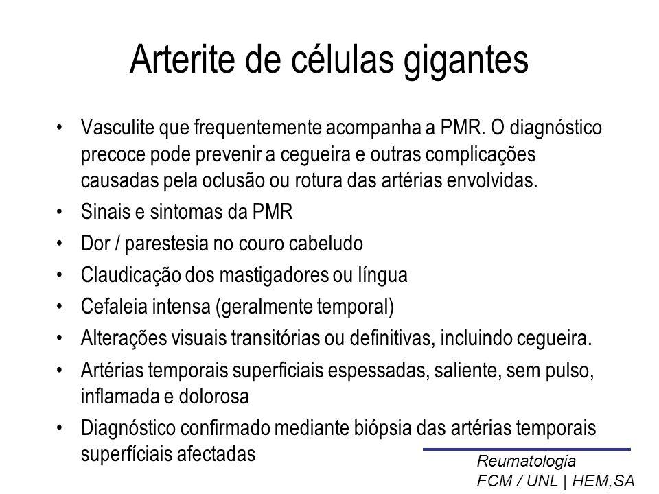 Arterite de células gigantes