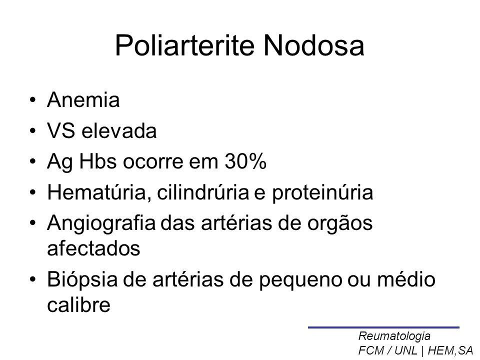 Poliarterite Nodosa Anemia VS elevada Ag Hbs ocorre em 30%