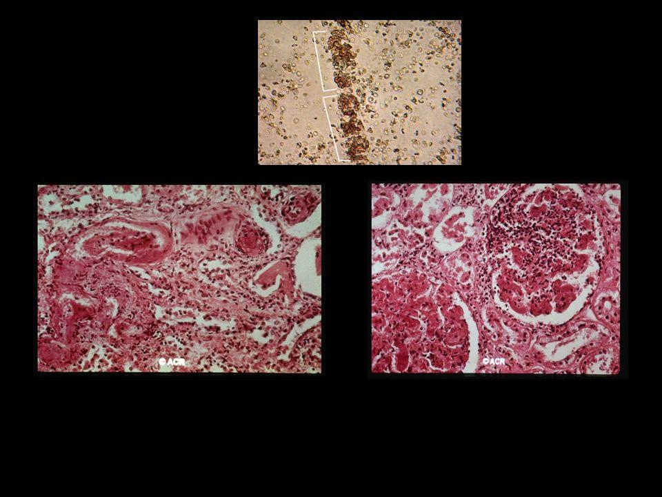 Arterite necrotizante