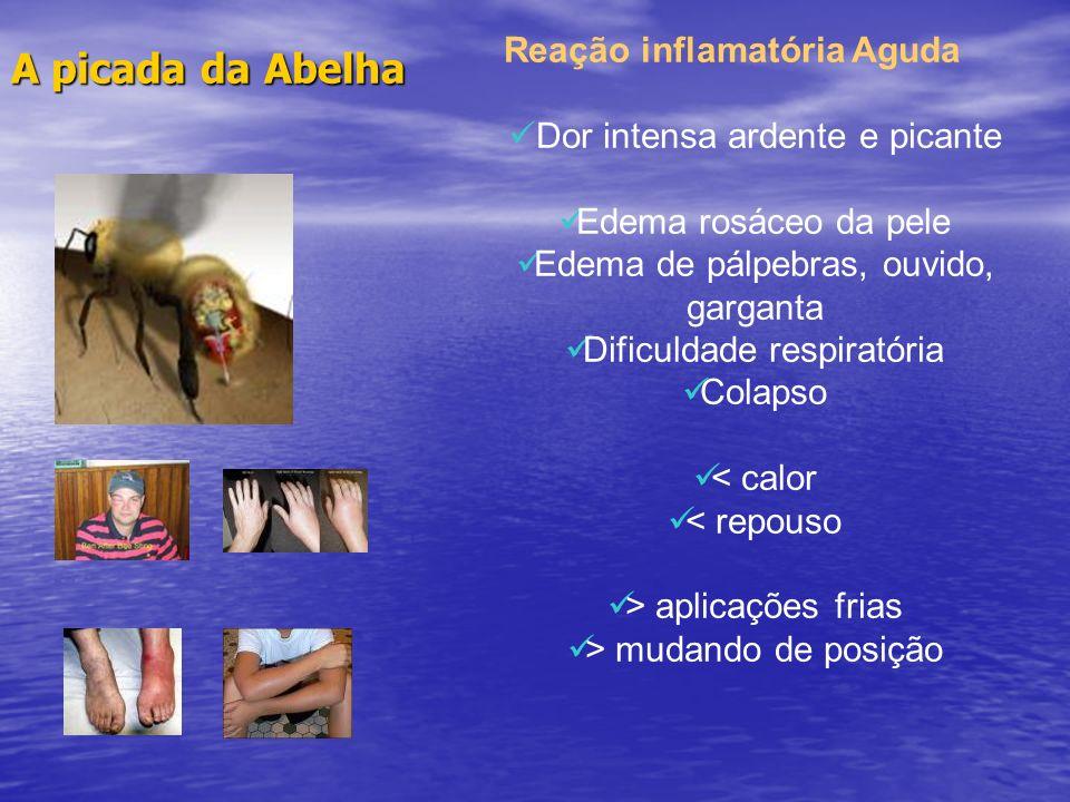 A picada da Abelha Reação inflamatória Aguda