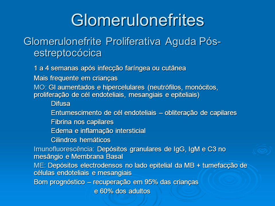 Glomerulonefrites Glomerulonefrite Proliferativa Aguda Pós-estreptocócica. 1 a 4 semanas após infecção faríngea ou cutânea.