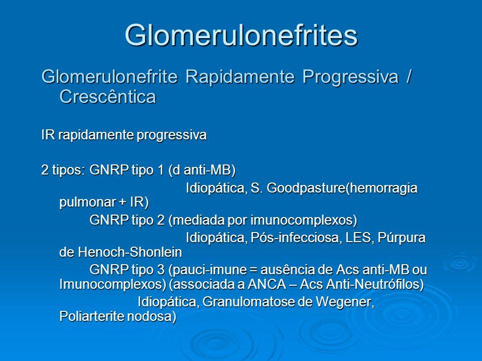 Glomerulonefrites Glomerulonefrite Rapidamente Progressiva / Crescêntica. IR rapidamente progressiva.