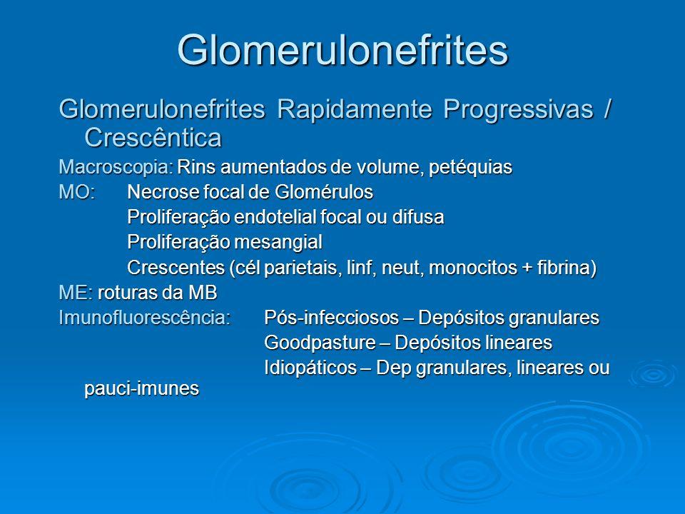 Glomerulonefrites Glomerulonefrites Rapidamente Progressivas / Crescêntica. Macroscopia: Rins aumentados de volume, petéquias.