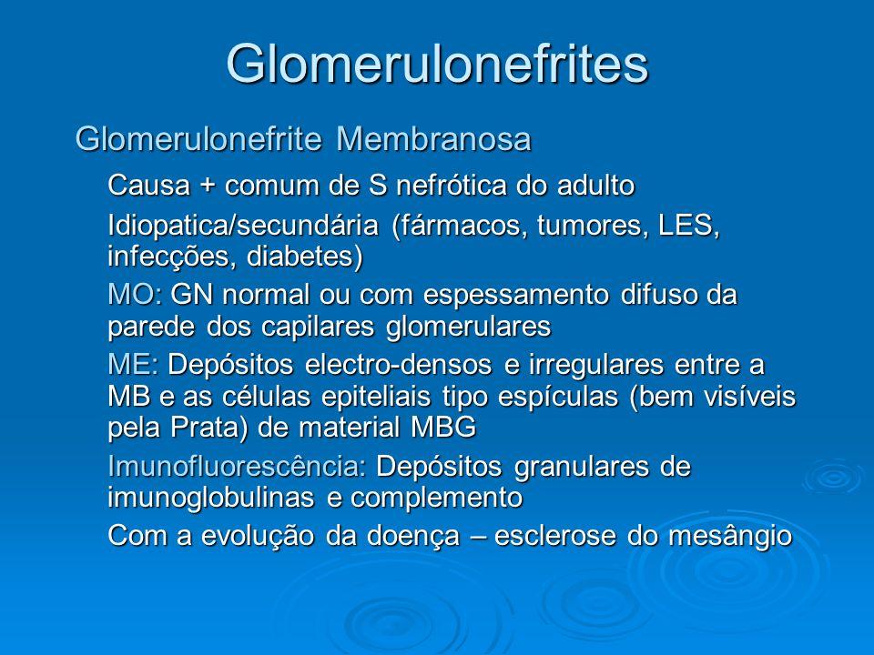 Glomerulonefrites Glomerulonefrite Membranosa