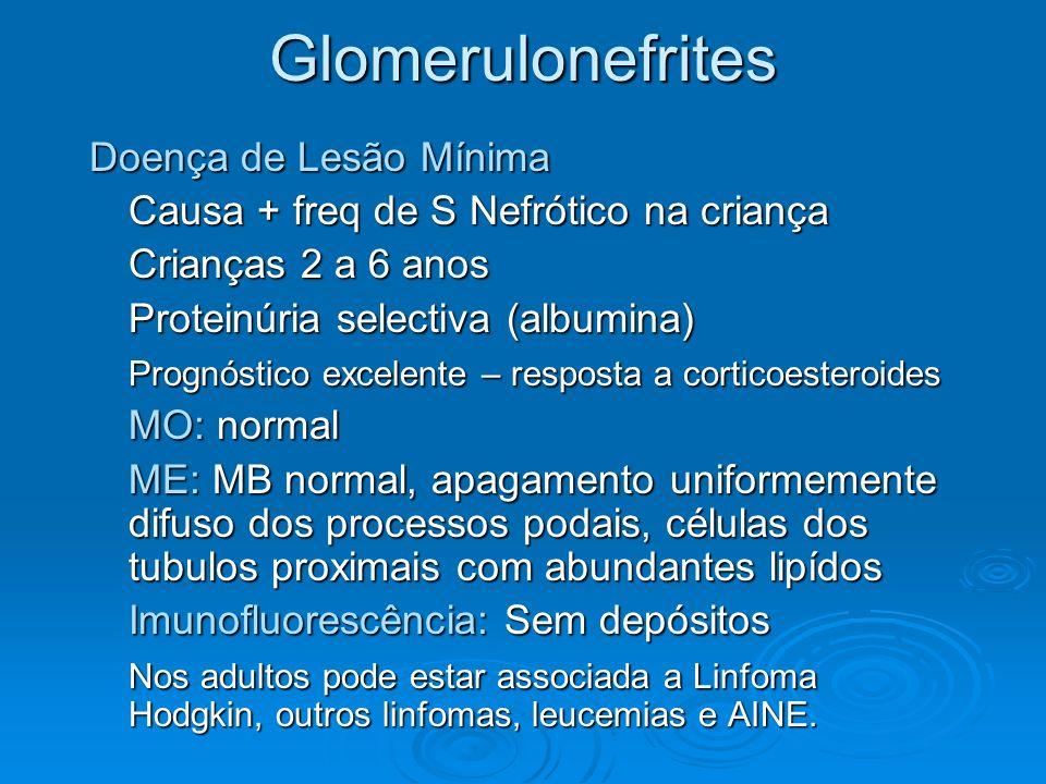 Glomerulonefrites Doença de Lesão Mínima