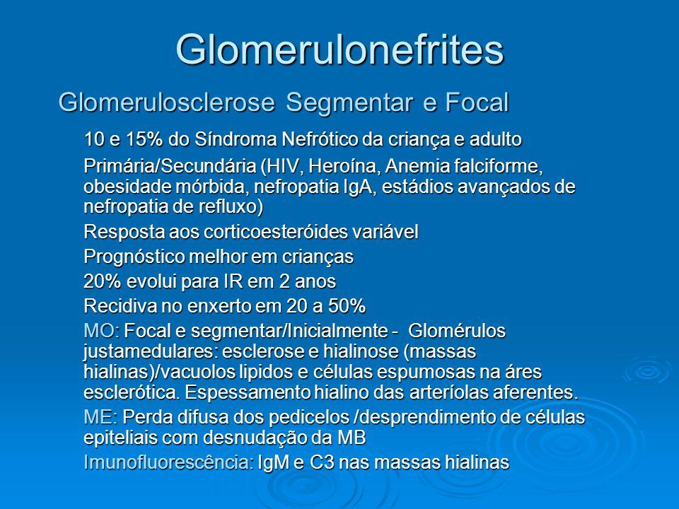 Glomerulonefrites Glomerulosclerose Segmentar e Focal