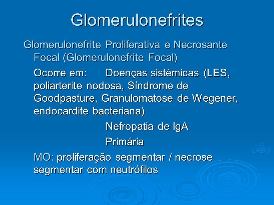 Glomerulonefrites Glomerulonefrite Proliferativa e Necrosante Focal (Glomerulonefrite Focal)
