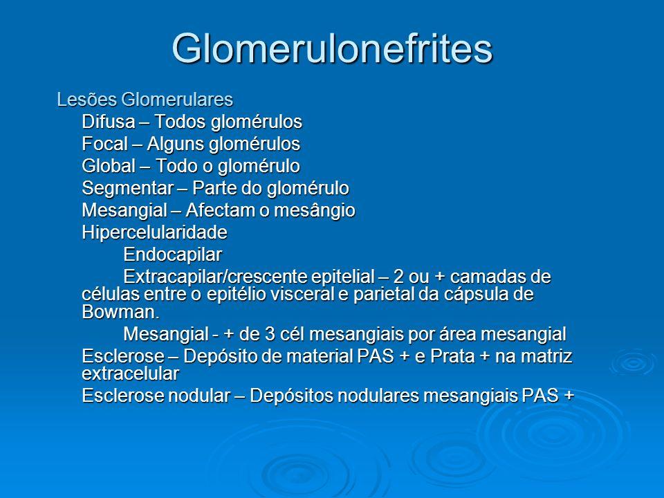 Glomerulonefrites Lesões Glomerulares Difusa – Todos glomérulos