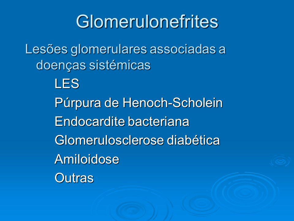 Glomerulonefrites Lesões glomerulares associadas a doenças sistémicas