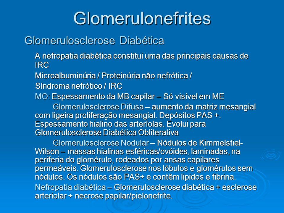 Glomerulonefrites Glomerulosclerose Diabética