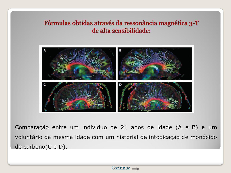 Fórmulas obtidas através da ressonância magnética 3-T de alta sensibilidade: