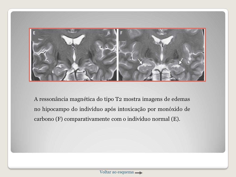 A ressonância magnética do tipo T2 mostra imagens de edemas no hipocampo do indivíduo após intoxicação por monóxido de carbono (F) comparativamente com o indivíduo normal (E).