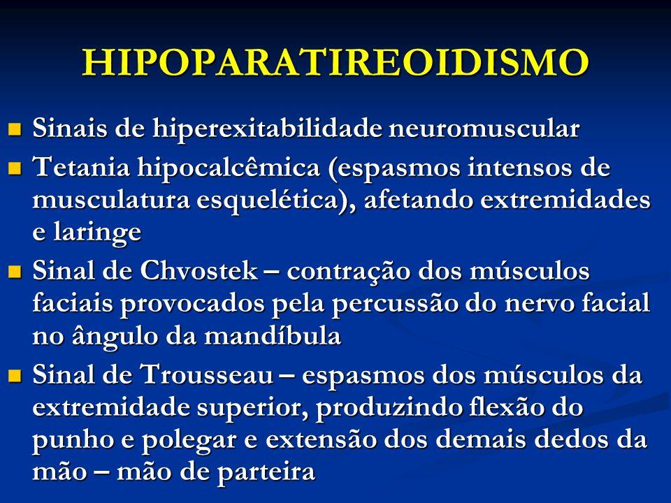 HIPOPARATIREOIDISMO Sinais de hiperexitabilidade neuromuscular