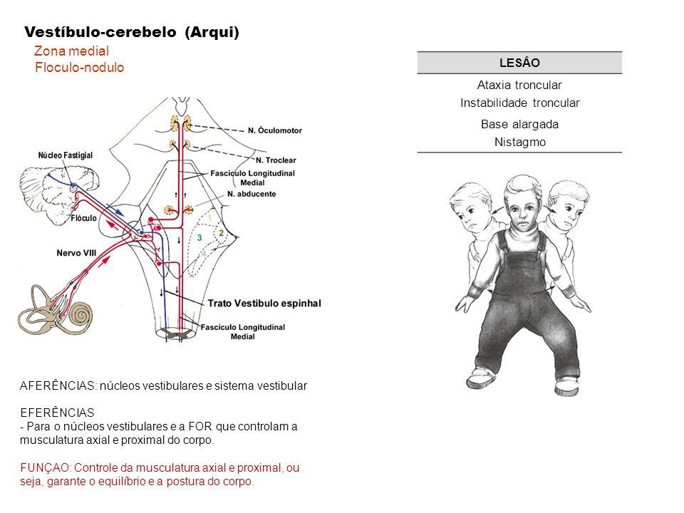 Instabilidade troncular