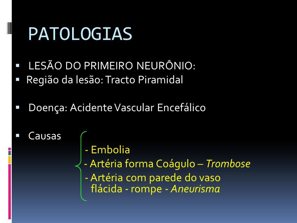 PATOLOGIAS LESÃO DO PRIMEIRO NEURÔNIO: