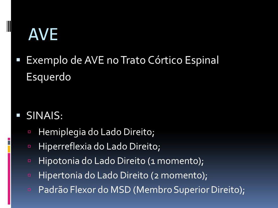 AVE Exemplo de AVE no Trato Córtico Espinal Esquerdo SINAIS:
