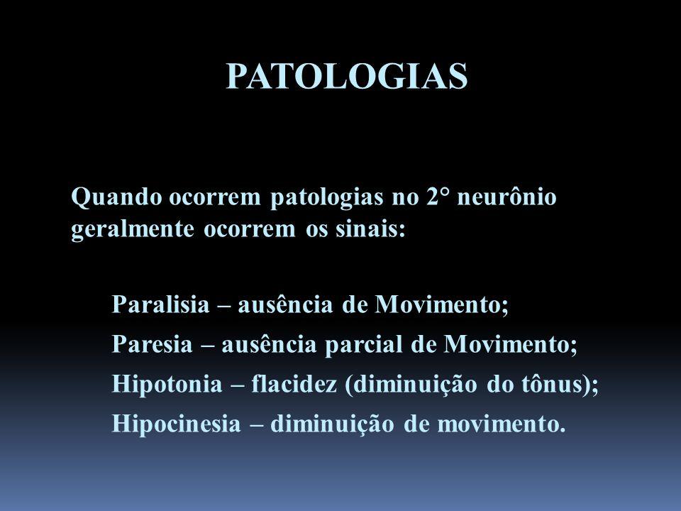 PATOLOGIAS Quando ocorrem patologias no 2° neurônio geralmente ocorrem os sinais: Paralisia – ausência de Movimento;