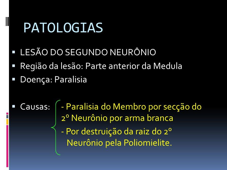 PATOLOGIAS LESÃO DO SEGUNDO NEURÔNIO