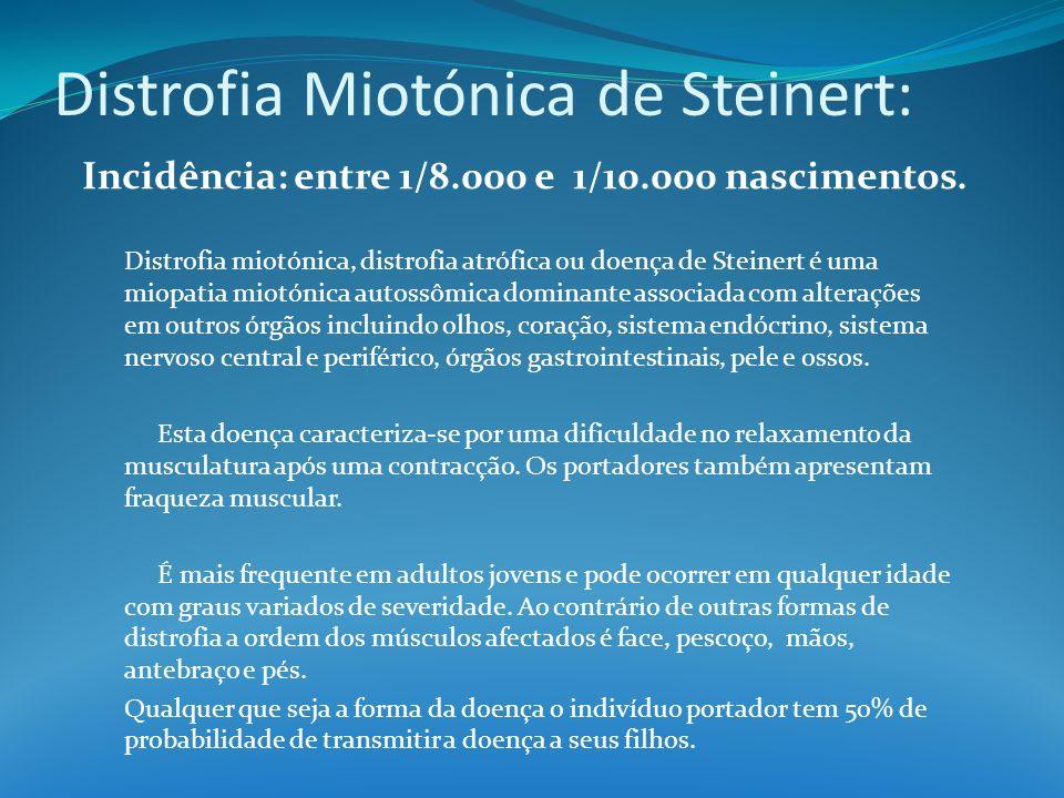 Distrofia Miotónica de Steinert: